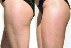 Dieta per combattere la Cellulite