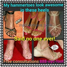 No one likes hammertoes. Call us for a free consultation. 888-nyc-foot / nycfootcare.com #NYC #ouch #celebrity #cosmetic #toes #makeup #manhattan #bronx #brooklyn #queens #fashion #fashionista #heels...