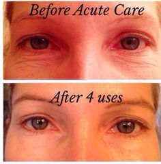 images  acute care  rodanfields  pinterest acute care  find   skincare