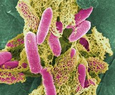 Natural Remedy Against E. Coli That Really Helps