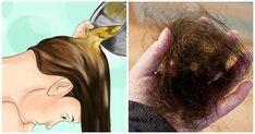 Przedwczesne wypadanie włosów jest obecnie bardzo częstym problemem i zaczyna mieć wpływ na wiele młodych ludzi, zarówno mężczyzn jak i kobiety. Zwykle wiąże się to z nadmiernym stresem, ciążą, menopauzą i utratą wagi, ale istnieje wiele