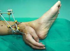 Hand Ankle Man's Hand Attached To Ankle In Emergency Procedure