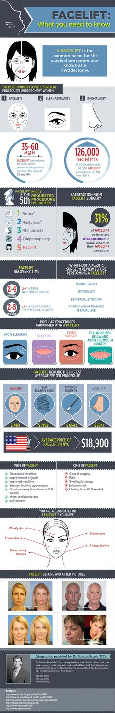 All About Facelifts : Find all the answers to common questions about facelift procedure (also known as rhytidectomy) such as recovery time, cost, satisfaction rates, top age group and other interesting statistics straight from the expert.  > http://infographicsmania.com/all-about-facelifts/?utm_source=Pinterest&utm_medium=ZAKKAS&utm_campaign=SNAP