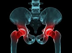 Exploring Hip Pain: Femoroacetabular Impingement | There are several exercises that should be avoided when training a client with FAI: * deep squats * exercises that involve excessive hip flexion with internal rotation or hip flexion with external rotation * plyometrics, particularly box jumps * any exercises that cause pain