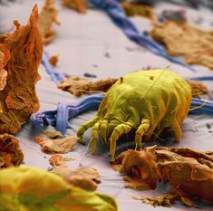 Disturbing image of the day... Coloured scanning electron micrograph (SEM) of a single dust mite among skin scales in housedust