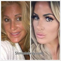 Kim Zociak asserts that she's 'had nothing done'. Full facelift, nose job, lip implants before and after Kim Zociak asserts that she's 'had nothing done'. Full facelift, nose job, lip implants before and after Plastic Surgery Quotes, Plastic Surgery Gone Wrong, Cheek Fillers, Botox Fillers, Lip Implants, Facial Procedure, Botox Before And After, Celebrity Plastic Surgery, Lip Injections