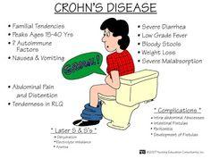 Crohn's Disease-ABC Medicine