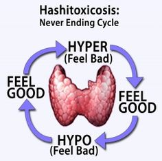 What is Hashitoxicosis - It is a transient hyperthyroidism caused by inflammation associated with Hashimoto's thyroiditis disturbing the thyroid...