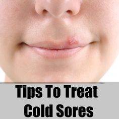 Treating Cold Sores On Lip