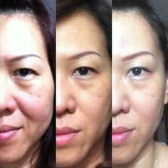 Luminesce cellular rejuvenation serum does wonders for your skin!  Turn back time, and look your best.  Individual results may vary.  Jeunesse does not endorse personal testimonies.