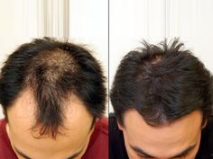 Hair Transplantation is a Safe and Easy Method