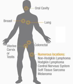 Common Cancer Symptoms -- Simple list of symptoms to be aware of -- If you notice any of these for over 2 weeks, make an appointment with your doctor. Knowledge is power!