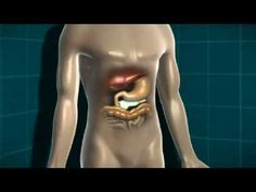 Animation about diabetes and the body. - http://nodiabetestoday.com/diabetes/animation-about-diabetes-and-the-body-2/?http://www.precisionaestheticsmd.com/