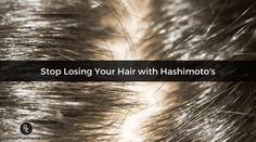 Hair loss is a distressing symptom experienced by women with Hashimoto's. For women, our hair represents our femininity, and losing our hair is a struggle. New Hair Growth, Hair Growth Tips, Hair Loss Causes, Male Pattern Baldness, Regrow Hair, Grow Long Hair, Hair Loss Women, Stop Hair Loss, Hair Loss Remedies