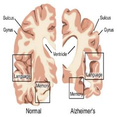 Best Treatments For Alzheimers