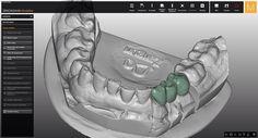 Dental Technician, Cad Cam, Dental Bridge, Dental Crowns, Cosmetic Dentistry, Facebook, Instagram Posts, Dental Laboratory
