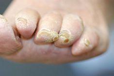 mycose-des-ongles-du-pied-antifongiques-comment-guerir-traitement-deformation-cremes-astuces-debarrasser-demangeaisons-infos-maintenant-net