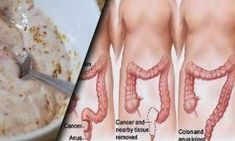 Natural colon cleansing was also employed by the Ancient Greeks as part of their natural health regimen and their tradition. In the United States, colon Colon Cleanse Diet, Natural Colon Cleanse, Colon Detox, Smoothie Cleanse, Detox Recipes, Clean Recipes, Detox Foods, Colon Cleansers, Juice Fast