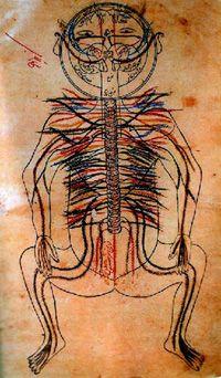 Neurocirugía - Laqve (cara torcida), considerada en el famoso tratado de Avicena: el canon de la Medicina