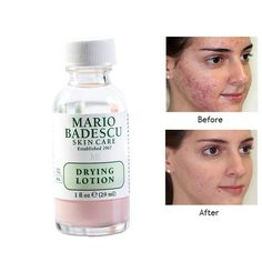 An Effective Acne Treatment Original Mario Badescu Drying Lotion Anti Acne Serum Pimple Blemish Removal Skin Care Back Acne Treatment, Spot Treatment, Acne Serum, Types Of Acne, Floating, How To Get Rid Of Acne, Pimples, Beauty Products, Tips