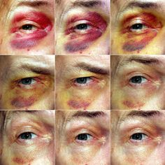 zygoma: Progression of periorbital hematoma (black eye) over ten days: the blood is gradually absorbed, but the iron-laden pigments in the ...