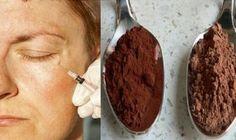 Aplikujte túto zmes na vašu pokožku a vymažte roky z vášho vzhľadu! | MegaZdravie.sk