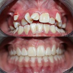 Orthodontic treatment - before and after