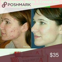Retinol Beauty Cream for Acne Fine Lines Wrinkles Brand new, unopened. Expires 8/2018 Makeup Concealer