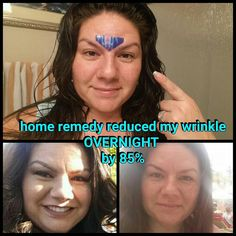 Face Yoga To Reduce Worry Furrows: Get Rid Of Eleven Lines Easily With Face Training Th… Wrinkle Between Eyebrows, Belleza Diy, Homemade Acne Treatment, Wrinkle Remedies, Face Cream For Wrinkles, Eye Wrinkle, Wrinkle Creams, Face Yoga, Les Rides