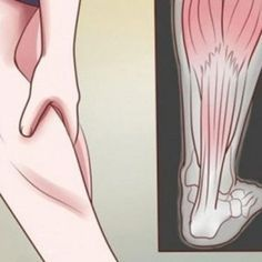 Are you familiar with the pains that occur in your legs while you sleep? Those are night leg cramps, or nocturnal leg cramps. They are able to wake you up and usually occur in the night time due to… Leg Spasms, Leg Cramps At Night, Bad Leg Cramps, Conditioning Workouts, Sore Muscles, Natural Treatments, Home Remedies, Natural Remedies, Squats