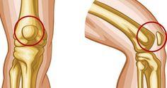 Découvrez les 8 meilleurs exercices pour soulager les douleurs aux genoux rapidement.
