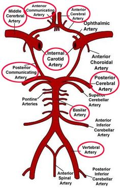 anterior communicating artery - Google Search