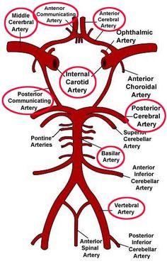 arteries of the brain - Google Search