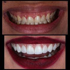 """Bom dia ... Semanas de grandes mudanças !! Segue caso de """"plástica gengival"""" e lentes contato ... Aspecto 1 semana pós colagem. Arte realizada @danielmorita !! #studioodonto #work #whitesmile #whiteteeth #estética #emax #teeth #unicamp #ultradent #ivoclarvivadent #odontology #odontologia #odontologiaestética #photo #aesthetics #art #smile #dentalphotography #dentistry #dentista #laminados #lentes #canon #biomimética #biomimetic #bleaching #naturalsmile #veneers #lentesdecontato by…"""