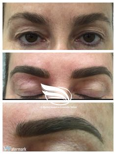 Freshly finished Cosmetic Tattoo of eyebrows using a combination of Hairstroke and Powder technique.  End result will look about 40% softer in colour.