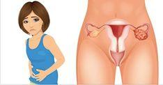 No mundo, milhões de mulheres morrem de câncer de ovário todos os anos.Esse tipo de câncer é silencioso.Por isso é muito importante fazer exames regularmente.Diagnosticar o problema antes do avanço é essencial para salvar a vida.