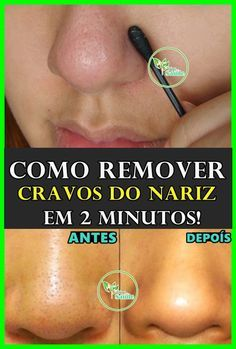 Skin Care, Makeup, Beauty, Hacks, Halloween, Cuticle Remover, Blackhead Remover, Best Beauty Tips, Natural Remedies