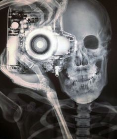 Had to steal this from a friend! For some reason us xray techs love taking pics! ;)