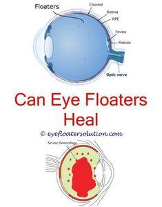 Ringing In Ears Eye Floaters