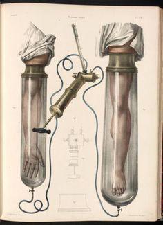Vacuum tubes for the arm and leg  (Traité complet de l'anatomie de l'homme) (1831)
