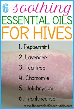 Top 6 Essential Oils for Hives