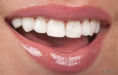 We are Implant Dentists in Boynton Beach offering Dental Implants Services. For More Call Us at for Your Dental Needs. Teeth Whitening Remedies, Natural Teeth Whitening, Whitening Kit, Natural Toothpaste, Dental Bonding, Teeth Bonding, Beautiful Teeth, Dental Veneers, Veneers Teeth
