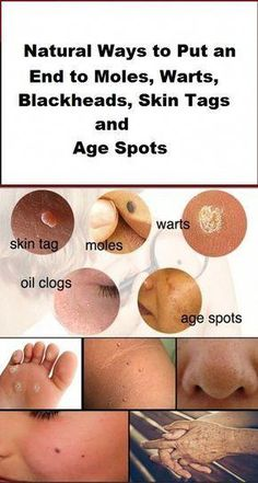 Natural Ways to Put an End to Moles, Warts, Blackheads, Skin Tags and Age Spots – Health&Beauty Black Spots On Face, Brown Spots On Skin, Dark Spots, Warts On Hands, Warts On Face, Be Natural, Natural Cures, Natural Health, Natural Sleep
