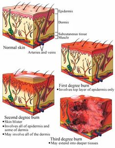 Guide to Burn Degrees Shows how the skin reacts to varying levels of burns useful for determining skin texture Trauma, Skin Anatomy, Subcutaneous Tissue, Skin Burns, Nursing Mnemonics, Medical Coding, Medical Science, Hand Therapy, Wound Care