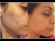 Mascarilla de Aspirinas | Elimina el acne en dias | 100% Funciona - YouTube