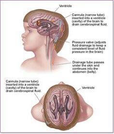 Hydrocephalus is a buildup of fluid inside the skull that leads to brain swelling. Brain, Level 3, Nursing, Behavior, Anatomy, Battle, Skull, Health, Places