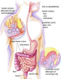 Suffering from Crohn's or Ulcerative Colitis? Want to learn more about your disease. Learn natural ways to manage your disease with AMP Floracel. Trusted formula Since Crohn's Disease, Disease Symptoms, Autoimmune Disease, Aloe Vera Supplement, Sigmoid Colon, Hernia Repair, Human Body Anatomy, Diverticulitis, Icu Nursing