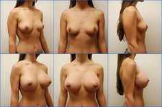 "Breast Augmentation Before After Photo. By Miami Plastic Surgeon: Dr. Leonard A. Roudner - www.drlenny.com Patient Information Age: 21 Height: 5'6"" Weight: 125 pounds Pre-Op Cup: B Post-Op Cup: D Implant Information Type: Silicone Gel Size: 500cc Placed: Submuscular Incision Type: Periareolar"