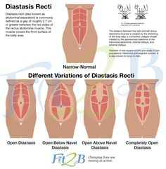 How to check for diastasis recti.  Watch a free video that shows you how to check your tummy for diastasis recti - Fit2B