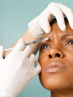Face fillers replace natural collagen--your skin's building block--which begins to deteriorate with age. Because the active ingredients in these fillers will gradually be re-absorbed by your body and results last for about 6 months in most of our patients, subsequent treatments are required.